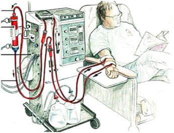 Пациент во время процедуры гемодиализа