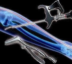 Эндоскопическое лечение синдрома сдавления локтевого нерва