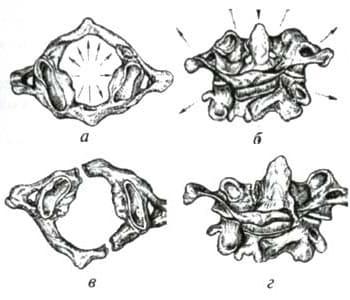 Схематичное изображение перелома атланта по Джеферсону