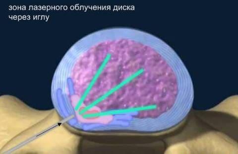 Лазерная реконструкция межпозвонковых дисков