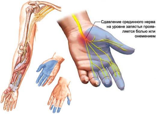 синдром запястного канала, синдром карпального канала