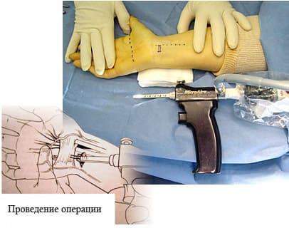 Эндоскопическая декомпрессия срединного нерва
