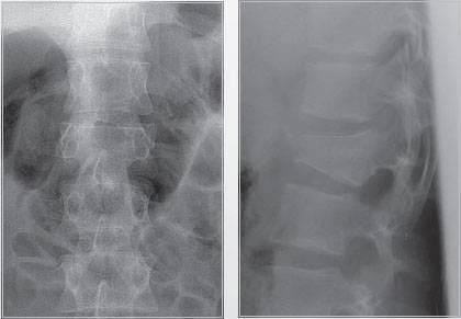 Перелом тела L2