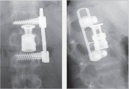 Передний спондилодез L1-L3 с замещением тела L2 имплантом Obelisc