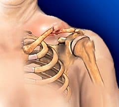 Перелом ключицы - Причины, симптомы и лечение. МЖ.