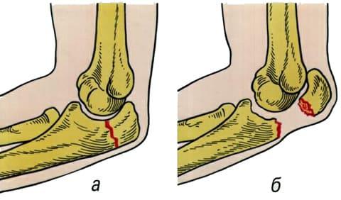 Перелом локтевого сустава (локтя) - Причины, симптомы и лечение. МЖ.