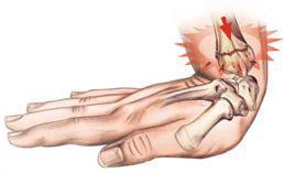 фото перелом предплечья