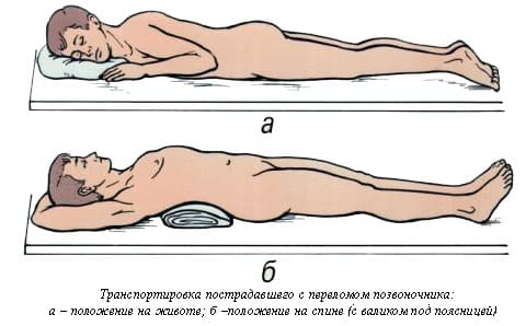 При грыжи шейного отдела на какой подушке спать