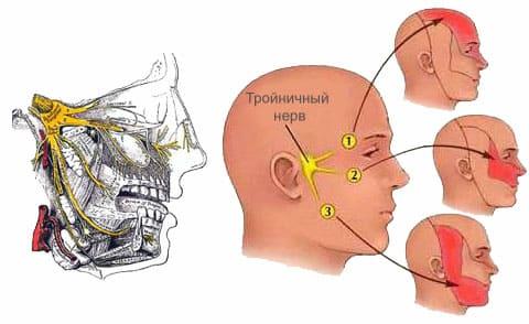Область боли при невралгии тройничного нерва
