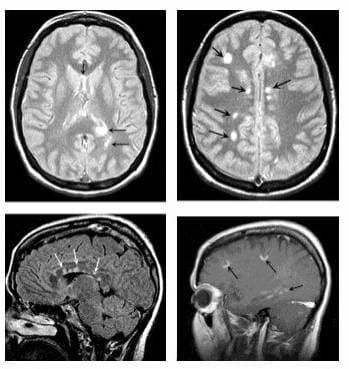Магнитно-резонансная томография. Указаны бляшки – очаги демиелинизации