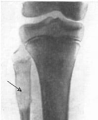 Рентгенологическое исследование, рак кости