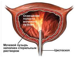Схематическое изображение цистоскопического исследования