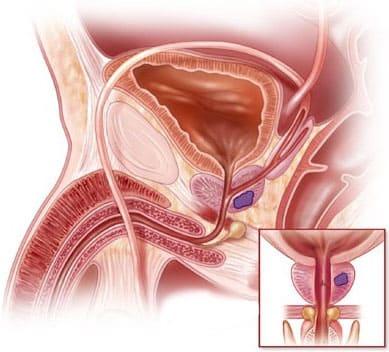 Симптомы злокачественной опухоли предстательной железы