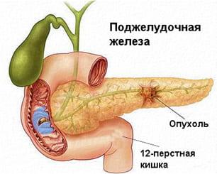 Злокачественные опухоли поджелудочной железы