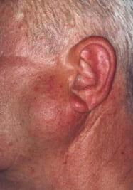 Рак околоушной слюнной железы