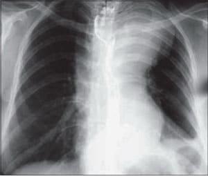 Что такое аневризма аорты сердца