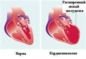 Картинки по запросу алкоголь и сердце картинка