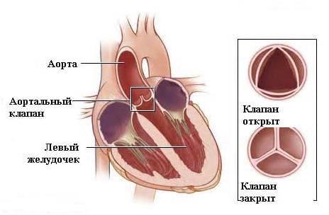 Аортальная недостаточность (недостаточность аортального клапана ...