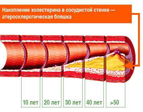 Атеросклероз мозговых артерий лечение