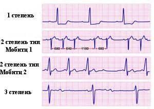 Блокады сердца - Причины, симптомы и лечение