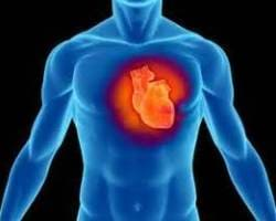 Дилатационная кардиомиопатия - Причины, симптомы и лечение. МЖ.