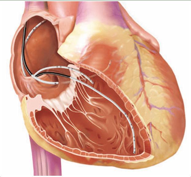 Инвазивное электрофизиологическое исследование сердца
