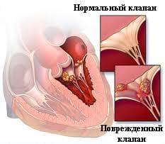 Нормальный и поврежденный клапан (эндокардит)