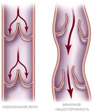 Хроническая венозная недостаточность (ХВН) - Причины, симптомы и ...