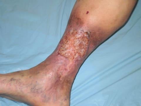38 неделя беременности болят ноги вены тянет