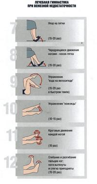 Средства от варикоза ног на ранней стадии