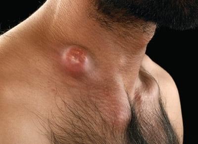 Гнойное расплавление надключичного лимфатического узла при лимфадените