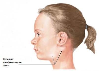 Начальная стадия лимфаденита, шейных лимфатических узлов.