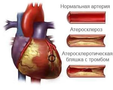 Нестабильная стенокардия - Причины, симптомы и лечение. МЖ.