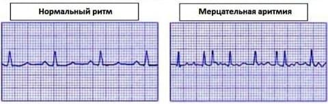 Аритмия сердца симптомы лечение первая помощь