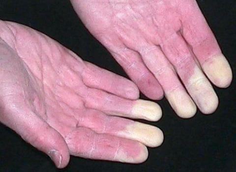 Почему мерзнут кончики пальцев на руках
