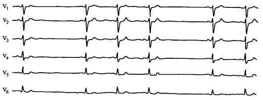 Нарушение синусового ритма сердца