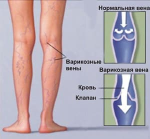 Приседания при варикозном расширении ног