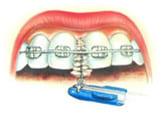 Использование зубного ёршика для очистки пространства под дугой