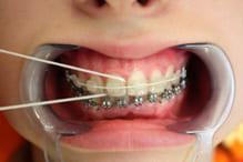Использование суперфлоса для очистки промежутков между зубами