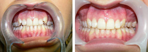 Фото исправления прикуса брекетами до и после лечения