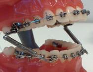 Брекеты на вестибулярной поверхности зубов