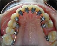Брекеты на оральной поверхности зубов
