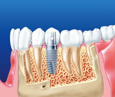 Вид имплантата в кости нижней челюсти
