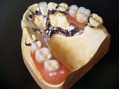 Бюгельный протез на верхнюю челюсть с литыми кламмерами