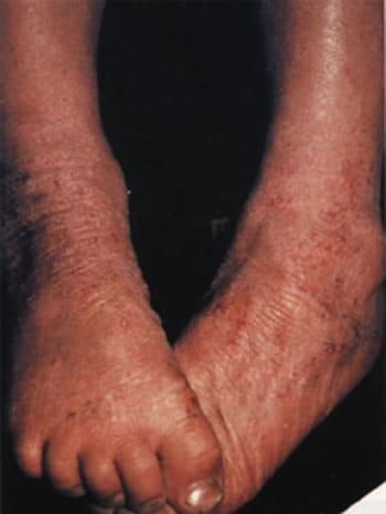 На фото: атопический дерматит. Взрослая форма симптомы