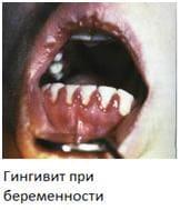 Лечение гингивита воспаления десен во время беременности
