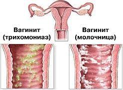 Вагинит, вызванный трихомониазом (зеленые,гнойные выделения) и вагинит, обусловленный молочницей (творожистые выделения)