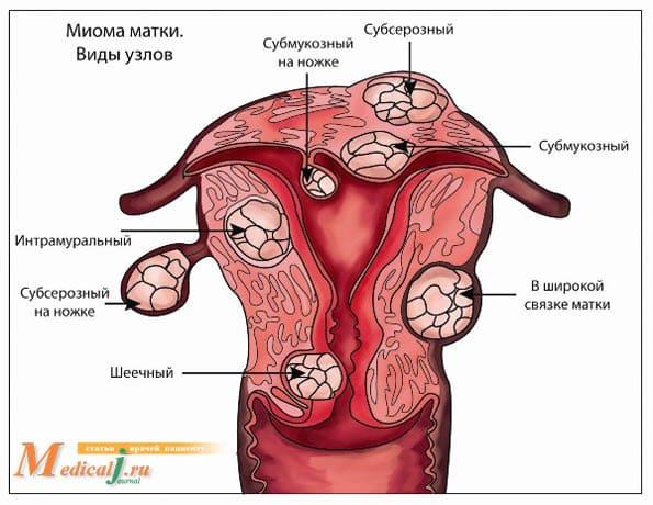 Миома матки �� - Причины, симптомы и лечение