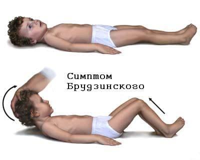 симптом Брудзинского (при попытке наклонить голову вперед в положении лежа ноги сгибаются в коленях, при надавливании на лобок ноги сгибаются в коленных суставах)