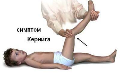 симптом Кернига (невозможность разогнуть согнутую в тазобедренном и коленном суставах ногу
